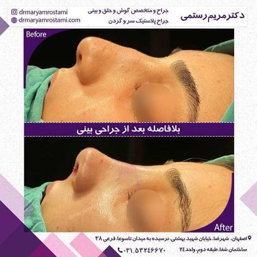 جراحی-بینی-108