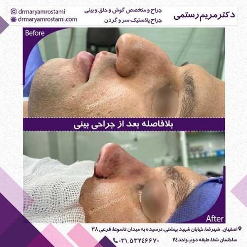 جراحی-بینی-118