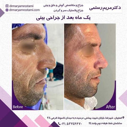جراحی-بینی-120