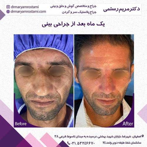 جراحی-بینی-121