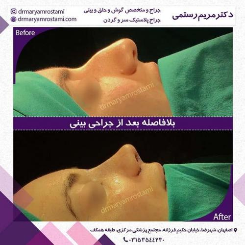جراحی-بینی-65